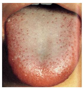 胃炎 口臭