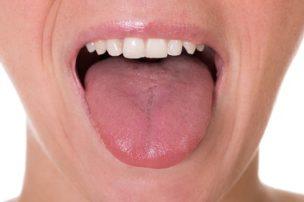 舌苔(ぜったい)除去して口臭ケ...